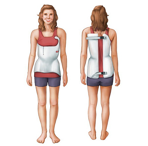 Scoliosis Bracing